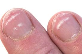 white-spots-on-nails.jpg